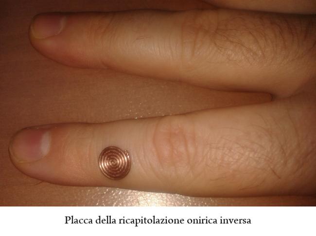placca-ricapitolazione-onirica